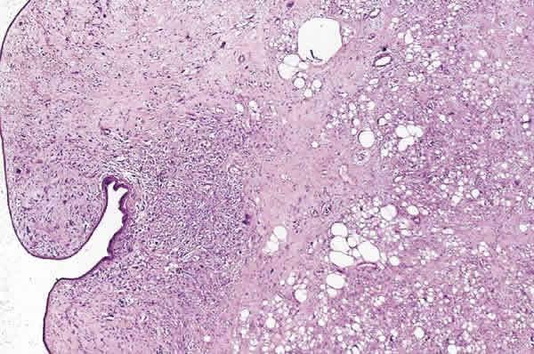 fig  6  tumor filodes maligno de mama  condensaci u00f3n